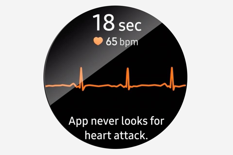 php2g3ja0 EKG